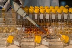Einfache Modell-Ökosysteme aus Nährmedium (Nährstoffe), verschiedenen Bakterienarten (Beute) und einer Wimpertierchen-Art (Räuber) sollen helfen, die komplexen Wirkungen von Störungen auf Ökosysteme besser zu verstehen. Foto: UFZ / André Künzelmann